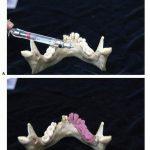 Mandibular Anesthesia Techniques