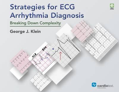 Strategies for ECG Arrhythmia Diagnosis PDF