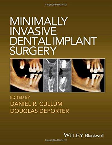 minimally invasive dental implant surgery pdf